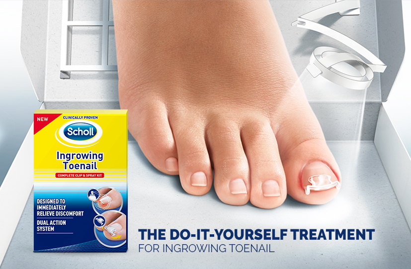 Scholl Treatment For Ingrown Toenails